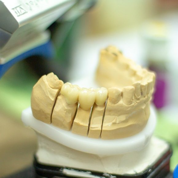 Here Are a Few Reasons to Consider Dental Implants!